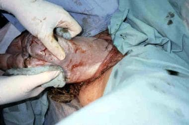 Assisted vaginal breech delivery. After the scapul