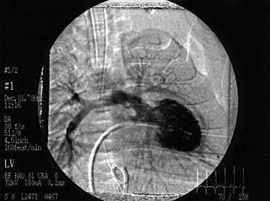 This left ventricular angiogram shows a patient wi
