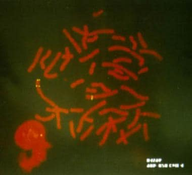 The result of a fluorescence in situ hybridization