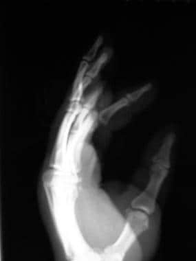 Volar proximal interphalangeal (PIP) joint disloca