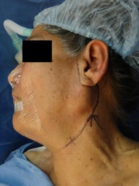 Parotidectomy. Left parotid mass; preoperative mar
