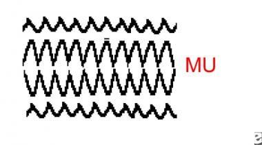 Example of mu waveforms.