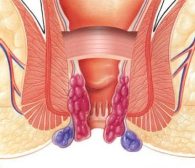 PPH stapled hemorrhoidectomy: schematic of circumf