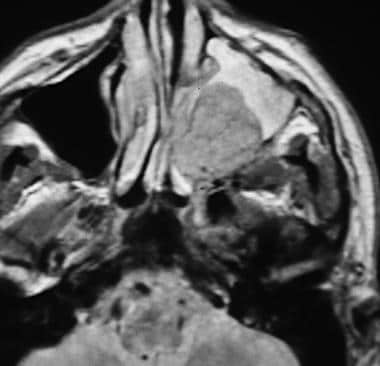 MRI of a patient with a maxillary sinus tumor in t