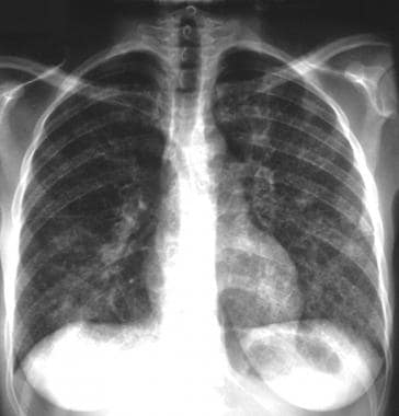 Typical radiographic appearance of lymphangitic ca