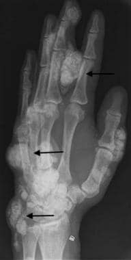 Oblique radiograph of the hand in a dialysis patie