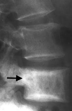 Lateral radiograph of the lumbar spine in a patien