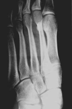 Fractured metatarsals. Oblique fracture of the met