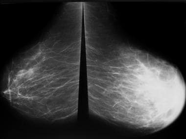 Breast cancer, mammography. Bilateral mammogram sh