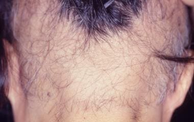 Woman with severe long-standing lesions from trich