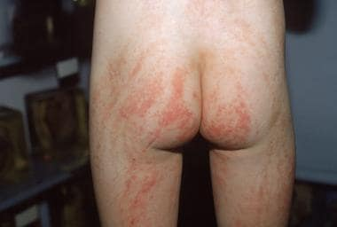 Characteristic lesions that follow the lines of Bl