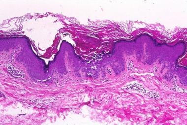 Histopathology of Darier-type Grover disease. A fo