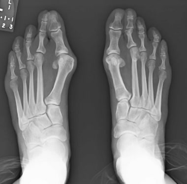 50-year-old woman with bilateral severe hallux val