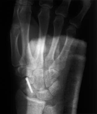 Carpal Fractures Treatment Management Approach Considerations