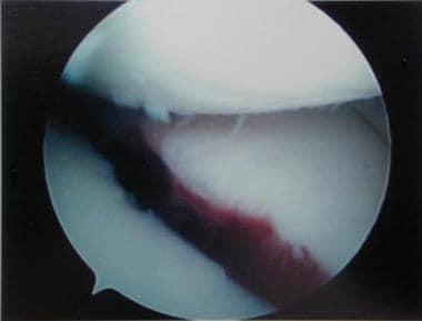 Arthroscopic photo of intercondylar eminence fract