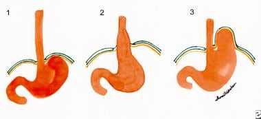 Hiatal hernia. Figure 1 shows the normal relations