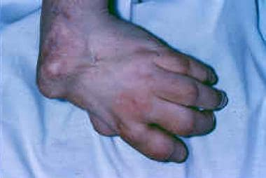 The clinical presentation of wrist arthritis can b