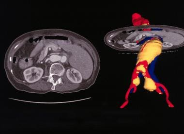 Enhanced spiral CT scans with multiplanar reconstr