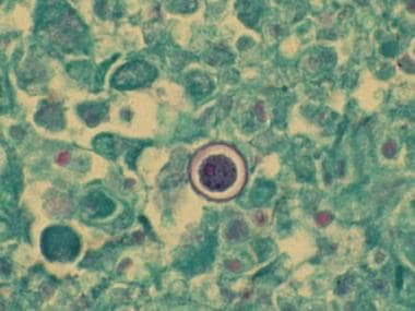 Pulmonary cocci spherule, periodic acid-Schiff sta