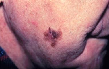 Lentigo maligna melanoma, right lower cheek. The c