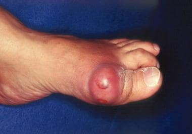Gout. Acute podagra due to gout in elderly man.