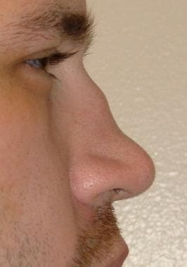 Saddle nose deformity in a 26-year-old man with gr