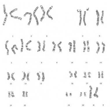 G-banded karyotype showing deletion of 4p, derived