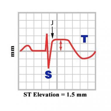 ST elevation.