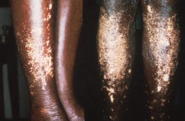 Skin of a West African person with leopard spot de