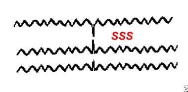 Example of small sharp spikes, also known as benig