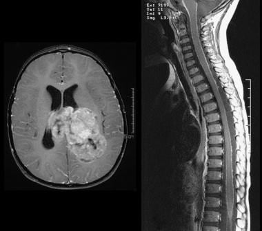 T1-weighted postcontrast images of the axial head