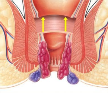PPH stapled hemorrhoidectomy: schematic of approxi