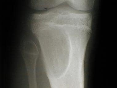 Radiograph of the proximal tibia of a 16-year-old