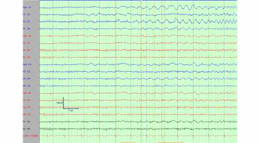 Electroencephalogram demonstrating a left temporal