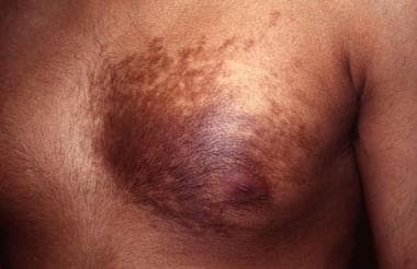 Becker nevus of chest wall with associated hypertr