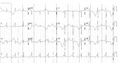 Electrical alternans. This electrocardiogram revea