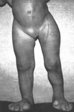 Proteus syndrome with hemihypertrophy of the limbs