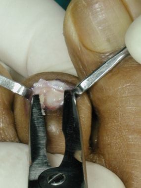Claw toe. Remove articular cartilage of middle pha