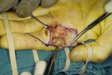 Intraoperative excision of the giant cell tumor of