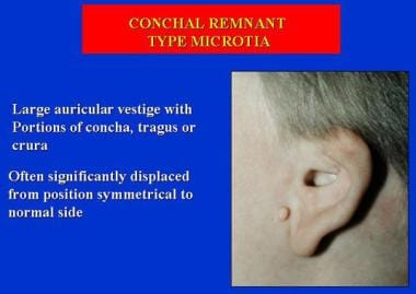 Conchal remnant type microtia.
