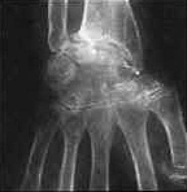 Rheumatoid arthritis of the wrist.