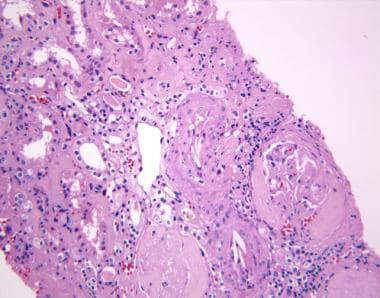 Kidney biopsy in interstitial nephritis. This imag