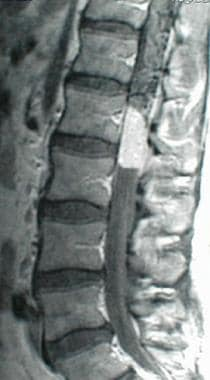 This is a sagittal image of an enhancing conus med