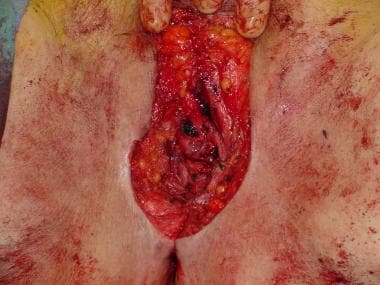 The surgical defect after a radical vulvectomy spe