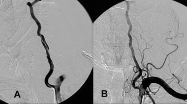 Vertebral Artery Dissection: Practice Essentials, Background
