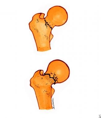 Femoral neck fractures. Top diagram is a nondispla