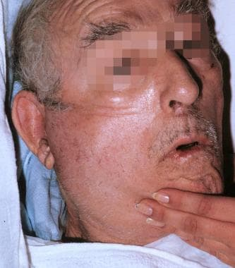 Elderly man with parotid abscess.