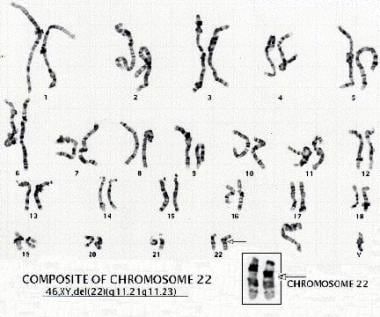 Karyotype of a patient with a deletion of chromoso