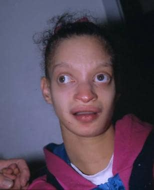 A girl with Wolf-Hirschhorn syndrome showing chara