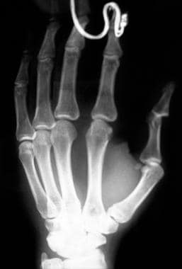 Dorsal thumb interphalangeal dislocation.
